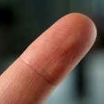 prstna blazinica z vidnimi brazdami